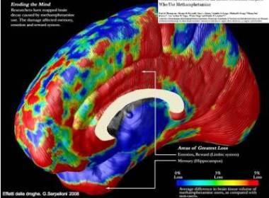 erosione cervello da metanfetamine
